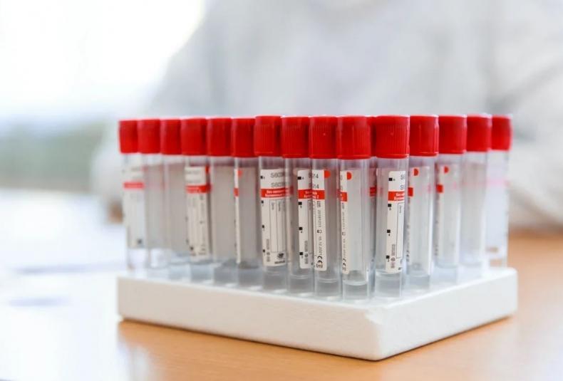 Еще 54 новых случая, 47 — тяжелых, один скончался: COVID-статистика на 12 июля в Приморье