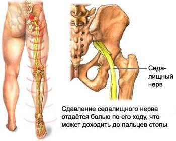 Причины болей суставов пальцев рук и лечение